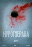 hypomo181